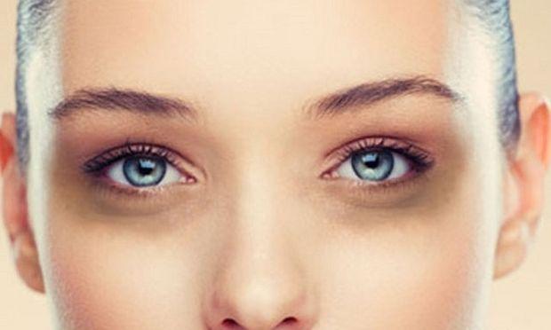 Σακούλες κάτω από τα μάτια-Πώς αντιμετωπίζονται