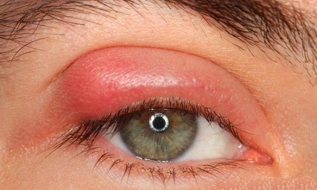 Κριθαράκι στο μάτι: Αίτια, πρόληψη και αντιμετώπιση