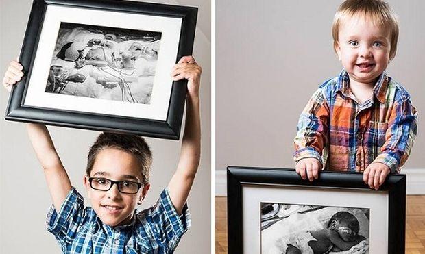 Παιδιά που γεννήθηκαν πρόωρα,μεγάλωσαν και ποζάρουν με τον...πρόωρο εαυτό τους (φωτό)
