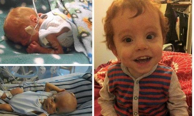 5 συγκινητικές ιστορίες πρόωρων μωρών που πάλεψαν και κρατήθηκαν στη ζωή (φωτό)