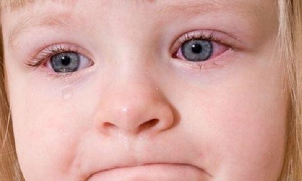 Πότε εμφανίζεται στα παιδιά η εαρινή κερατοεπιπεφυκίτιδα