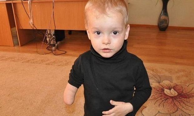 Συγκινητικό:Το υιοθετημένο αγόρι που γεννήθηκε με ένα χέρι, διαπιστώνει ότι δεν είναι μόνος του (φωτό)