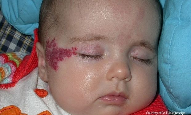 Πότε εμφανίζονται τα αιμαγγειώματα στα παιδιά και πώς θεραπεύονται;