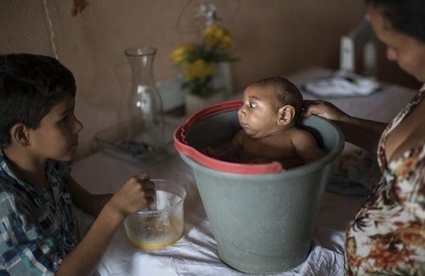 Ανησυχία στις ΗΠΑ για τον ιό Ζίκα που συρρικνώνει τον εγκέφαλο των νεογέννητων!