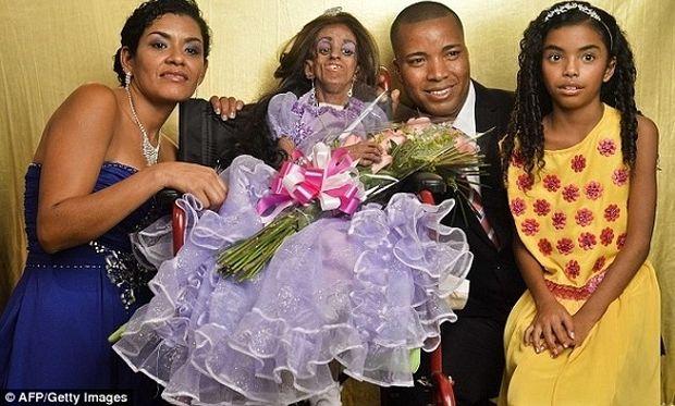 Κολομβιανή έφηβη γιόρτασε τα 15α γενέθλιά της αν και πάσχει από προγηρία