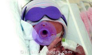 Συγκλονιστικές εικόνες: «Για τρεις εβδομάδες φωτογράφιζα το πρόωρο μωράκι μου στο νοσοκομείο!»