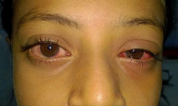 03ecb708f878 Όταν το μάτι του παιδιού είναι κόκκινο ή ροζ. Τι συμβαίνει και πώς μπορούμε  να
