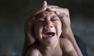 ΠΟΥ: Αισιοδοξία ότι θα βρεθεί γρήγορα εμβόλιο κατά του ιού Ζίκα