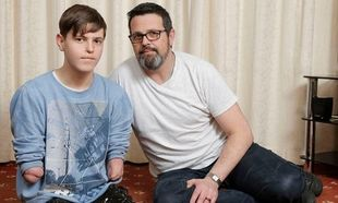 Έφηβος με ακρωτηριασμένα άκρα κλήθηκε να αποδείξει την αναπηρία του! (φωτό)