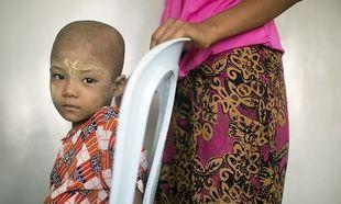 Γιατί τα πολύ φτωχά παιδιά με λευχαιμία υποτροπιάζουν πιο γρήγορα