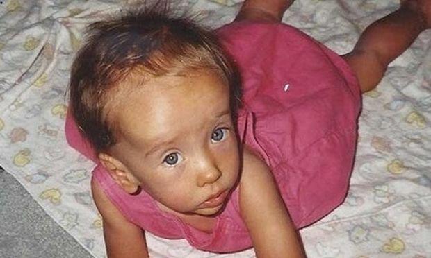 Σύνδρομο Sotos: Τι είναι και πότε εμφανίζεται στο παιδί