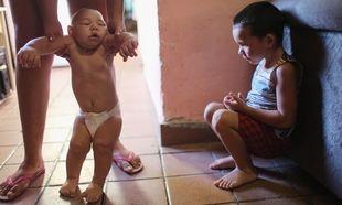 Νέα έρευνα:Στο 1% η πιθανότητα γέννησης μωρού με μικροκεφαλία λόγω του ιού Ζίκα
