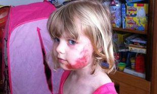 Δεν πάει ο νους σας από τι τραυματίστηκε το 4χρονο κοριτσάκι (φωτό)