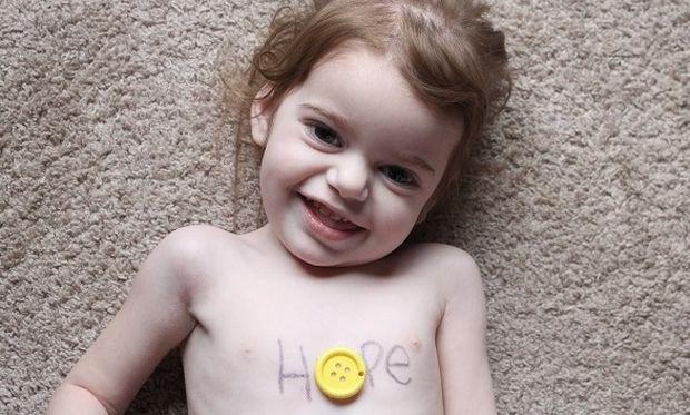 Σπάνιες ασθένειες: Υπολογίζονται σε 7.500 και οι περισσότερες εμφανίζονται στην παιδική ηλικία