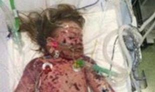 Γονείς έχασαν το 2χρονο κοριτσάκι τους από μηνιγγίτιδα Β και δημοσίευσαν αυτή τη σοκαριστική φωτό. Δείτε γιατί