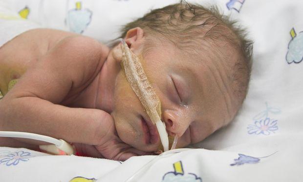 Μύθος ή αλήθεια: Σε πρόωρο τοκετό είναι προτιμότερο να γεννηθεί το μωρό στον 7ο παρά στον 8ο μήνα;