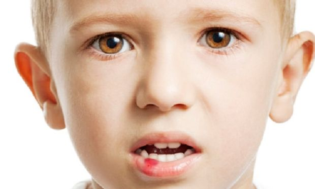 Τι να κάνετε αν το παιδί σας δαγκώσει τη γλώσσα ή το χείλος του