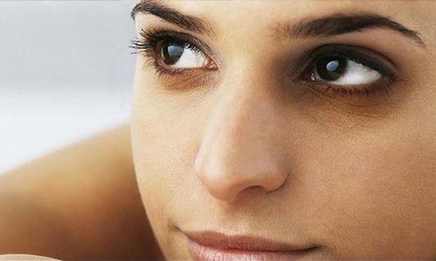 Πώς να απαλλαγείτε από τους μαύρους κύκλους κάτω από τα μάτια σας