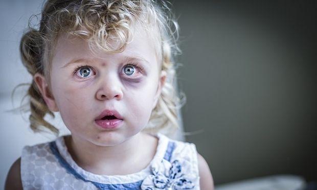 Παιδική κακοποίηση: Άγνωστος ο ακριβής αριθμός των παιδιών που κακοποιούνται στην χώρα μας-Δεν αρκεί η συγκίνηση