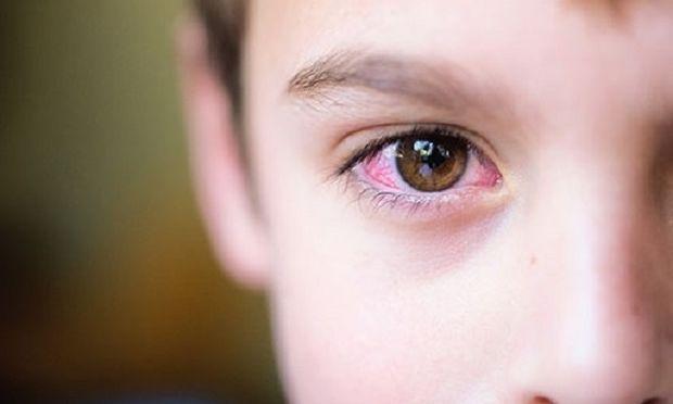 Συναγερμός στα σχολεία από τα κρούσματα εμφάνισης ψείρας στα βλέφαρα των παιδιών-Τι πρέπει να γνωρίζετε