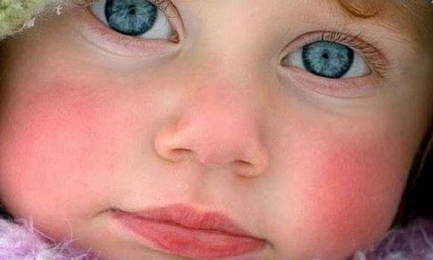 Ποιοι είναι οι λόγοι που ένα μωρό έχει κόκκινα μάγουλα  - Mothersblog.gr 8acb5c798f9