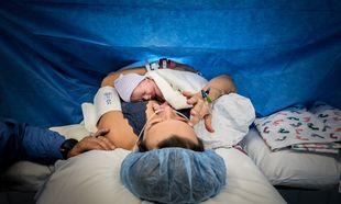 3 αλήθειες για τις μαμάδες που έχουν γεννήσει με καισαρική τομή