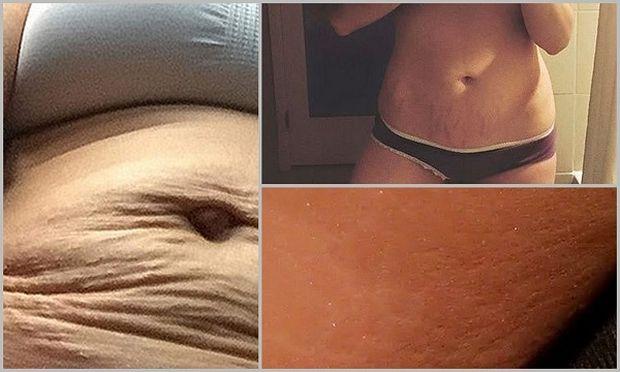 Σημάδια, κυτταρίτιδα και ραγάδες: 5 διάσημες μαμάδες που έδειξαν γυμνό το κορμί τους μετά την εγκυμοσύνη