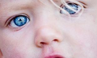O παιδικός καταρράκτης μπορεί να διαγνωστεί τώρα και με αλγόριθμο