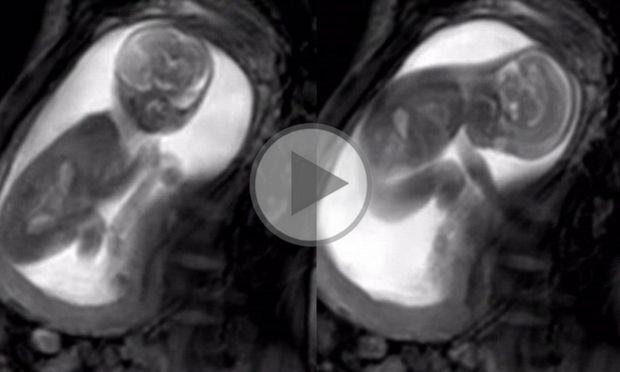 Νέος υπέρηχος δείχνει καθαρά το έμβρυο, να κινείται, να καταπίνει και να τραβά τον ομφάλιο λώρο (vid)