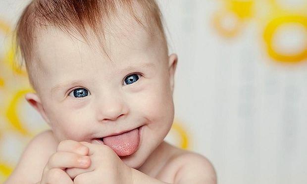 Νέα μέθοδος προγεννητικού ελέγχου για το Σύνδρομο Down (εξωκυττάριο εμβρυϊκό DNA - cell free fetal DNA)