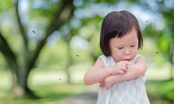 Τσιμπήματα από κουνούπια - Αντιμετώπιση με φυσικά μέσα