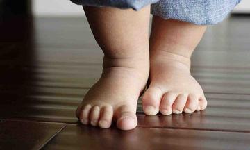Πλατυποδία παιδιού και στροφή των ποδιών προς τα μέσα: Τι πρέπει να γνωρίζουν οι γονείς
