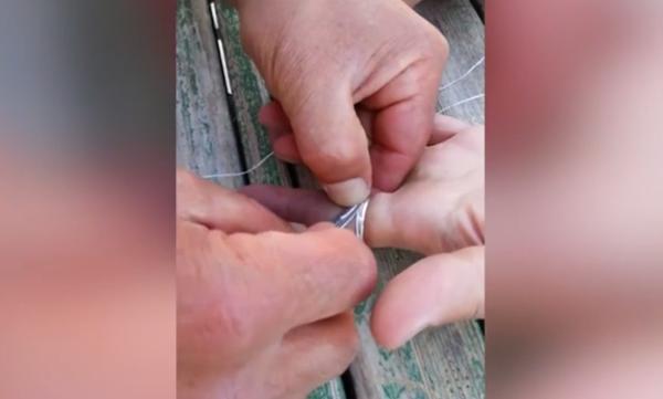 Ένα έξυπνο κόλπο για να βγάλεις το δαχτυλίδι που έχει κολλήσει στο δάχτυλο