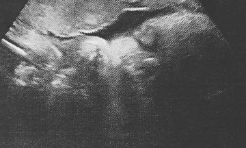 Για πρώτη φορά, μας δείχνουν το υπερηχογράφημα του μωρού που περιμένουν