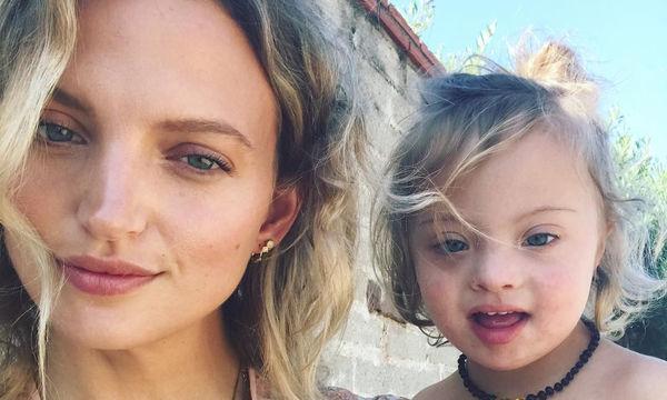 «Ανακάλυψα ότι ο γιος μου έχει Σύνδρομο Down όταν έγινε 3ων μηνών», το γνωστό μοντέλο εξομολογείται