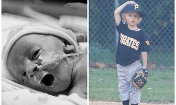 Το θαύμα της ζωής: Φωτογραφίες πρόωρων μωρών όταν γεννήθηκαν και σήμερα που μεγάλωσαν