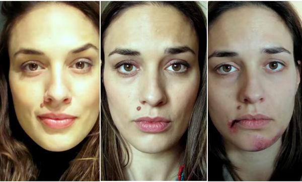 Τα στάδια της κακοποίησης μέσα από προσωπικές φωτογραφίες, μίας νεαρής κοπέλας (vds)