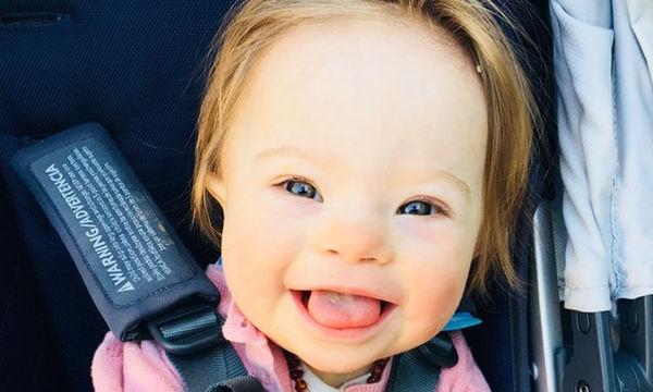 Γνωστή ηθοποιός δημοσίευσε φωτογραφία της κόρης της με Σύνδρομο Down και είναι απλά αξιολάτρευτη