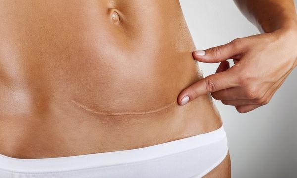 Αυτές είναι οι 5 πικρές αλήθειες που καλούνται να αντιμετωπίσουν οι γυναίκες, μετά την καισαρική