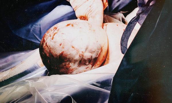Η σπάνια στιγμή που ένα κοριτσάκι γεννιέται με το κεφάλι του μέσα στον αμνιακό σάκο
