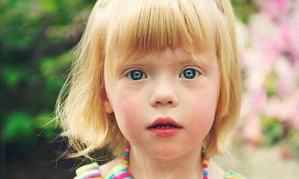 Οι 44 φωτογραφίες που δείχνουν πώς μοιάζει ο Αυτισμός