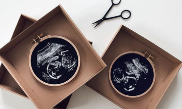 Μία μαμά δημιουργεί υπέροχα κεντήματα από φωτογραφίες υπερήχων (pics)