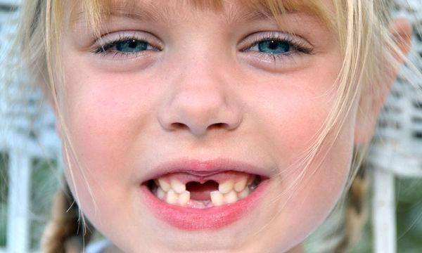 Γνωρίζετε τι πρέπει να κάνετε αν τραυματιστεί το μόνιμο δόντι του παιδιού σας;