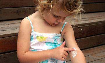 Δερματικές αλλεργίες: Τι πρέπει να γνωρίζετε
