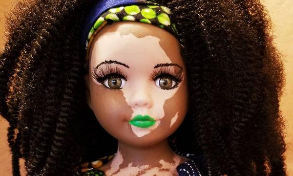 Καλλιτέχνης δημιουργεί μοναδικές κούκλες για τα παιδιά με λεύκη (pics & vid)