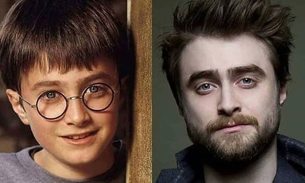 10 φωτογραφίες που δείχνουν το πριν και μετά των πρωταγωνιστών του Harry Potter (pics&video)