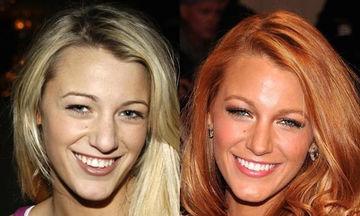 14 φωτογραφίες διασήμων πριν και μετά την ρινοπλαστική