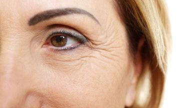 Ανεπάρκεια βιταμινών: Με ποια σημάδια εκδηλώνεται στο πρόσωπο (εικόνες)