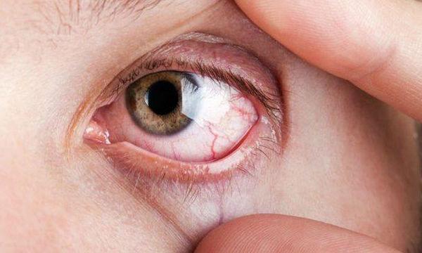 Σύνδρομο Sjögren: 7 συμπτώματα της συχνής αυτοάνοσης πάθησης μέσα από φωτογραφίες