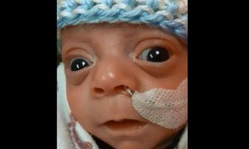 Γεννήθηκε πρόωρα και μας χαρίζει το πρώτο του χαμόγελο (video)